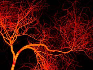 Blood vessels in your aging body